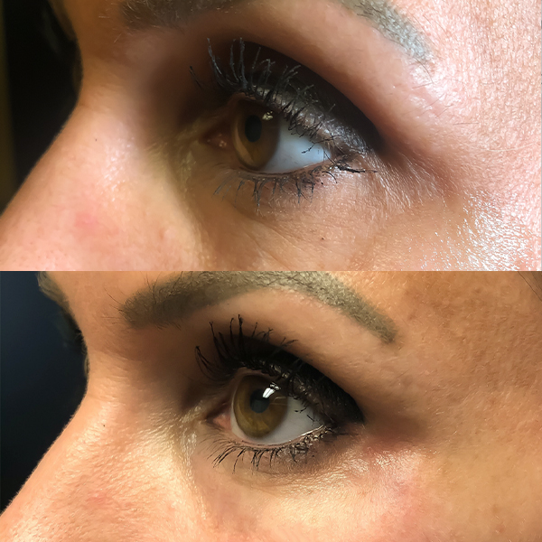 Before and After Medizen Eyes