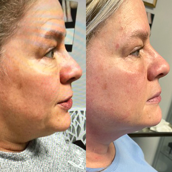 Before And After Medizen Sculpting