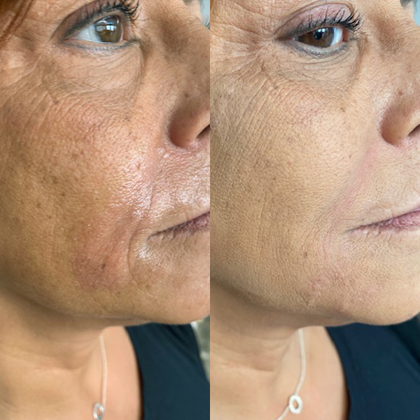 Before And After MediZen Skin Strengthen