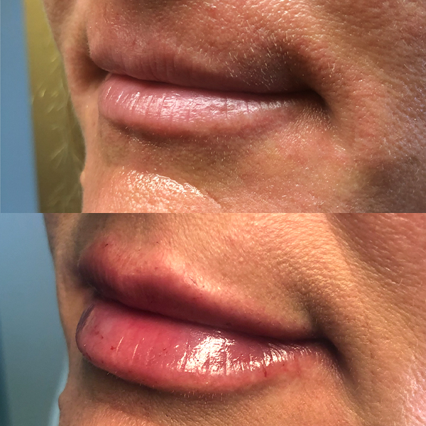 Before and After Medizen Lips