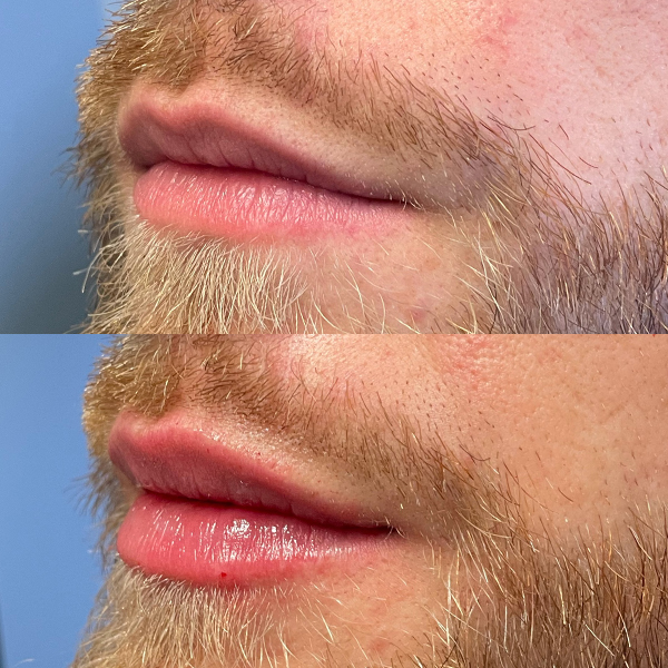 Before and After Lips - Man